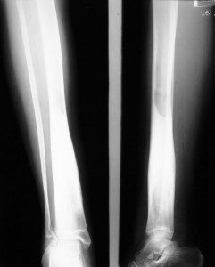 Поражение тела большеберцовой кости