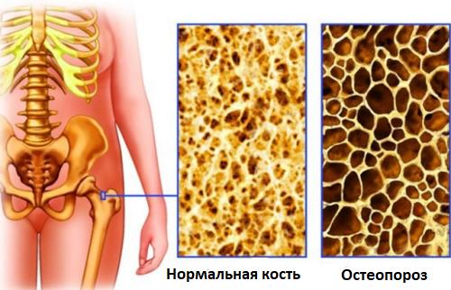 изменения при остеопорозе