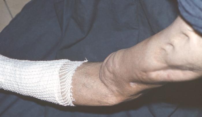 атипичные формы остеомиелита