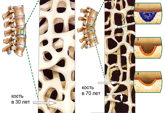 Возрастные костные изменения