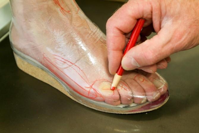 снятие замеров для ортопедической обуви