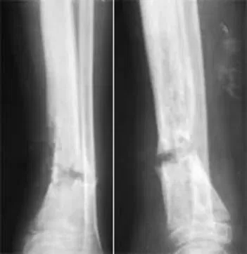 Хронический остеомиелит большеберцовой кости