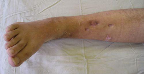 Причины возникновения остеомиелита, классификация, симптомы
