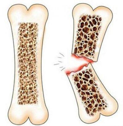 увеличение риска переломов при остеопорозе