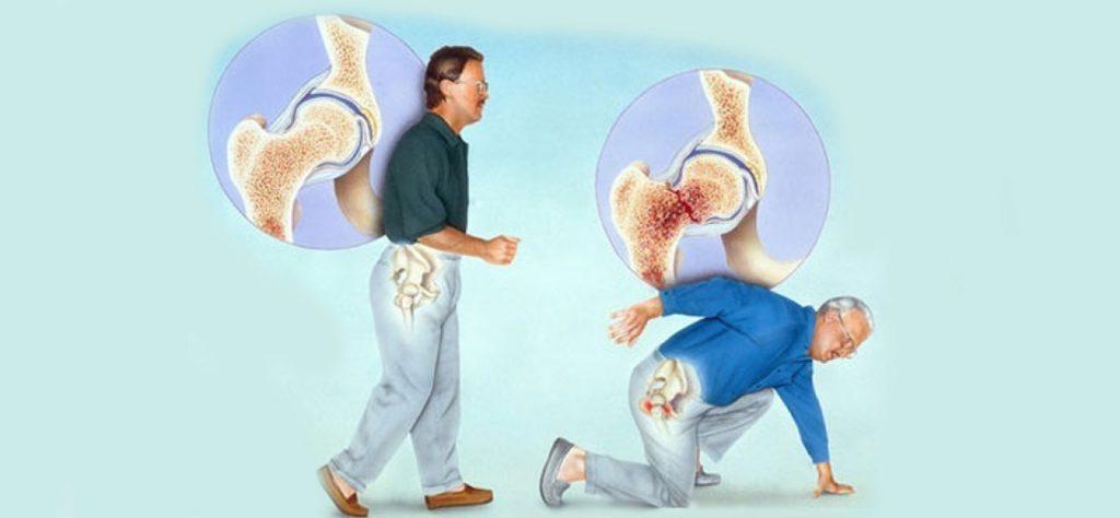 степени развития остеопороза