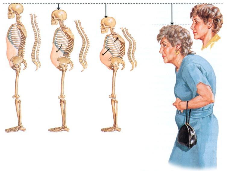 развитие остеопороза с возрастом