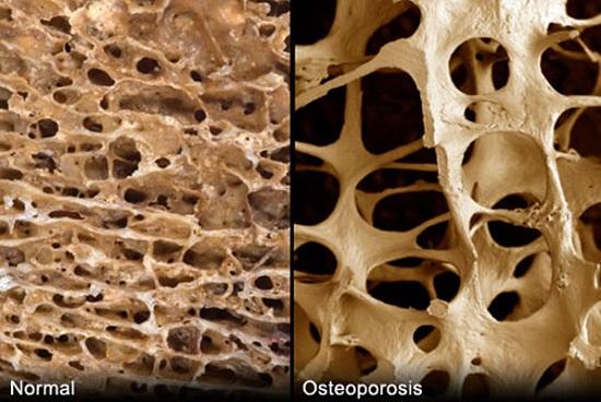 заболевание костной системы