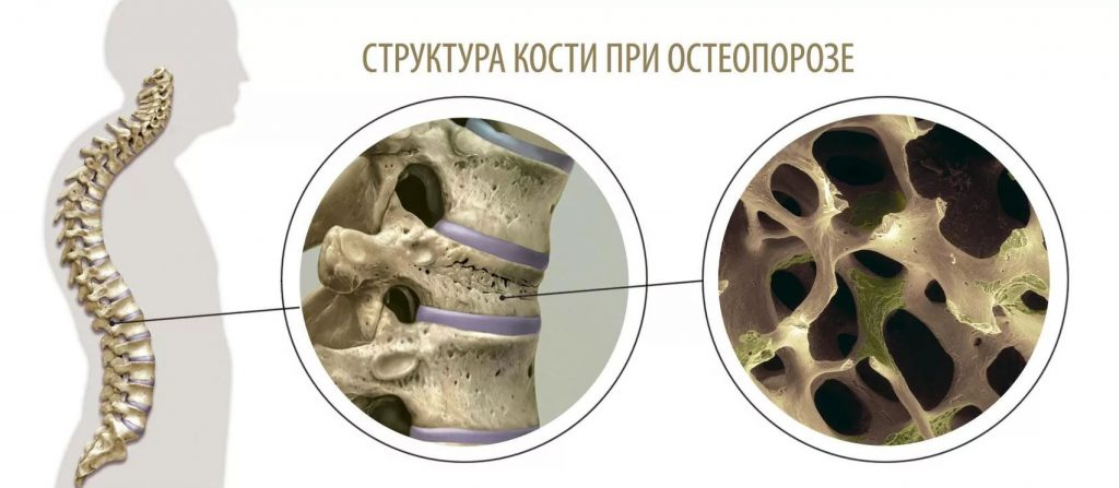признаки остеопороза