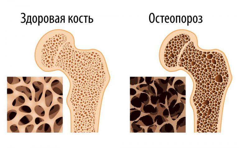 Центры лечения остеопороза в москве
