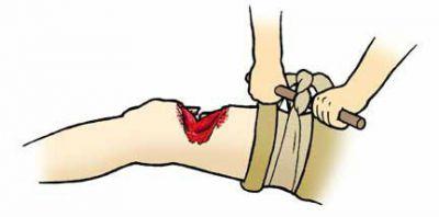 остеомиелит в результате травмы