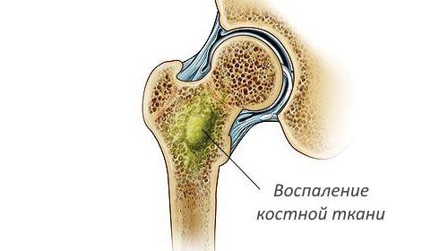 воспаление кости