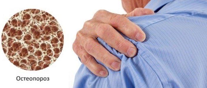 признаки остеопороза плеча
