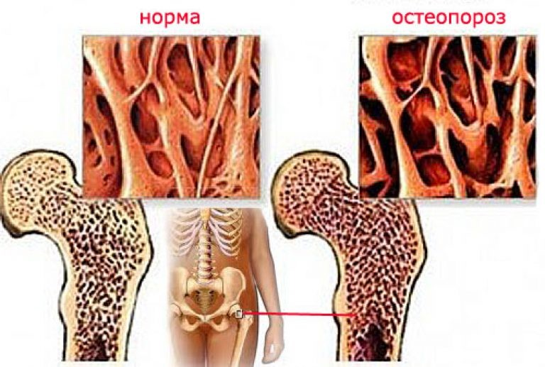 истончение костей при остеопорозе