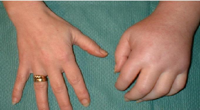 отечность мягких тканей при остеопорозе