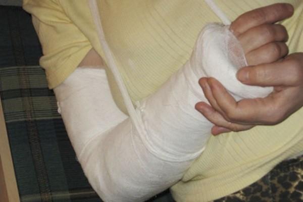 перелом руки и остеопороз
