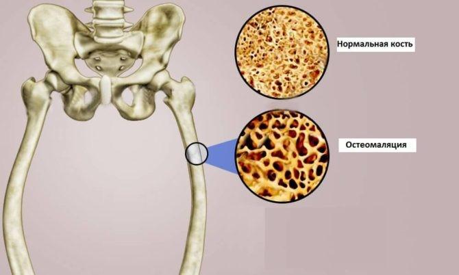 разрушение костей при остеомаляции