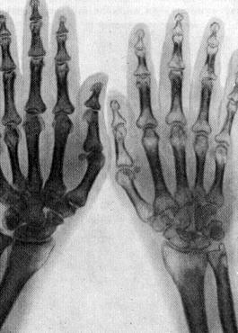 рентгенография травмированной кости