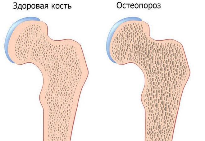 снижение плотности костей при остеопорозе