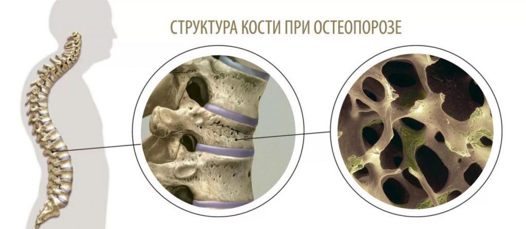 От чего болят кости при остеопорозе