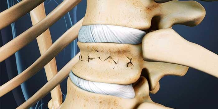 суставные щели при эпифизарном остеопорозе
