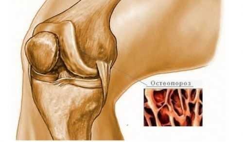 поражение суставов при остеопорозе
