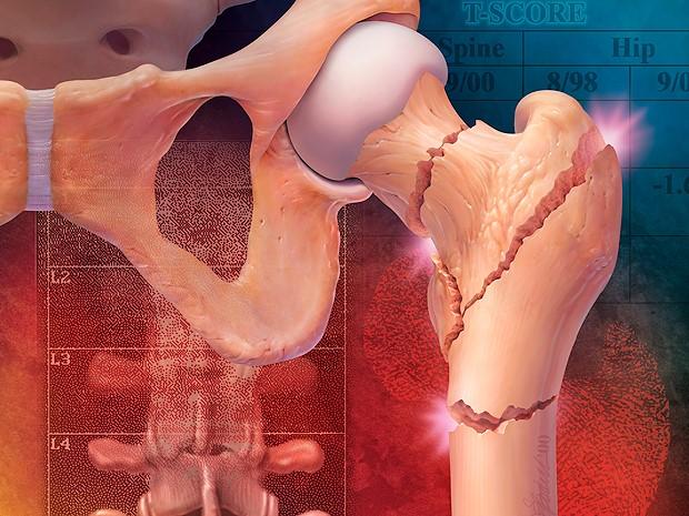 кости суставов при эпифизарном остеопорозе