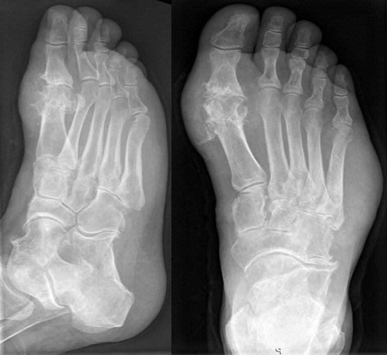 Фото-снимок подагрического артрита стопы
