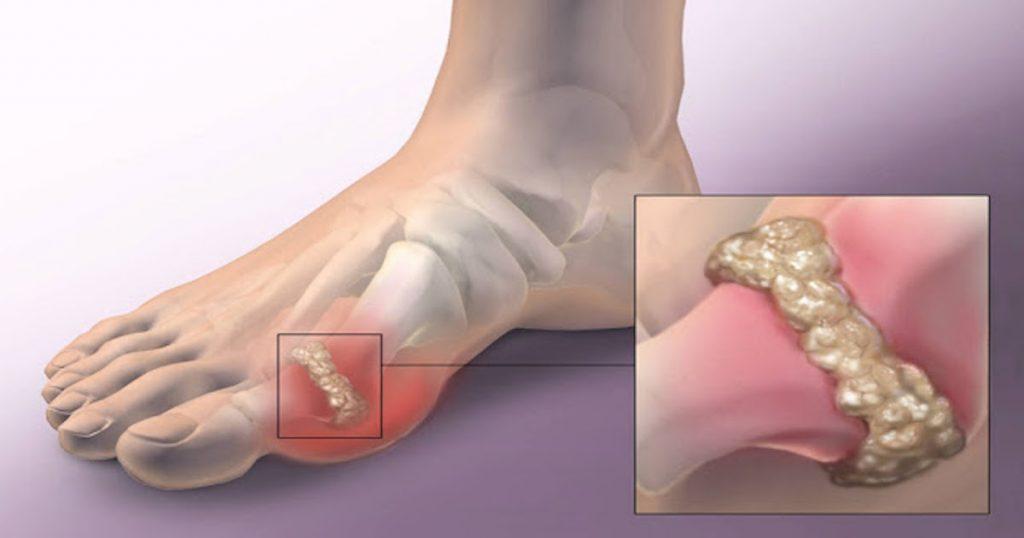 Изображение - Почему горит коленный сустав artrit-bolshogo-palca-1024x538