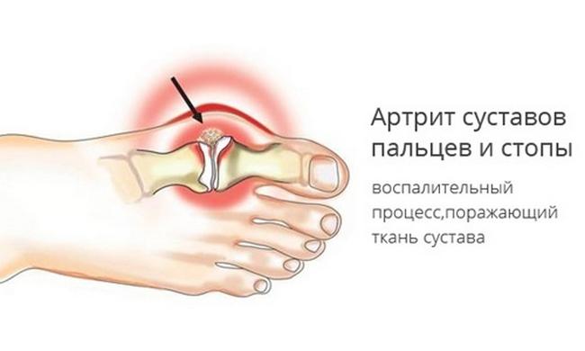 Изображение - Болит сустав на ноге около большого пальца artrit-bolshogo-palca-nogi