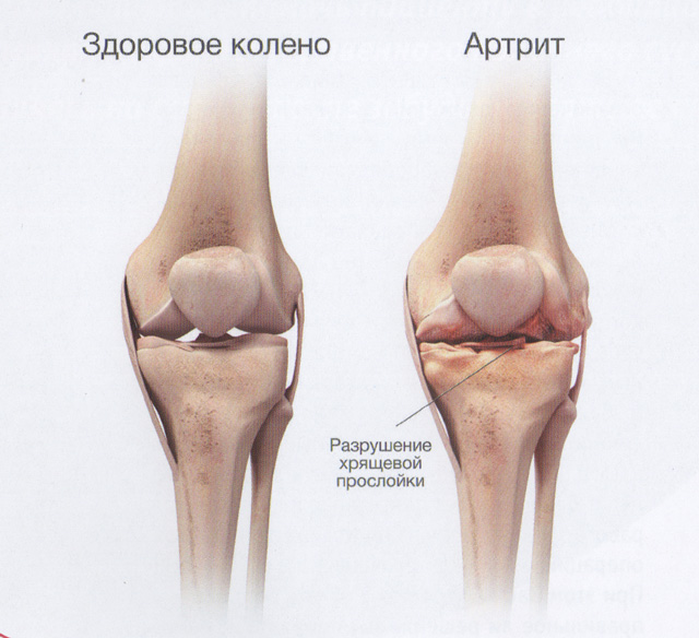 Изображение - Почему горит коленный сустав artrit-kolena