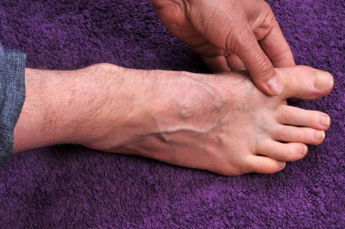 Массаж больного пальца ноги