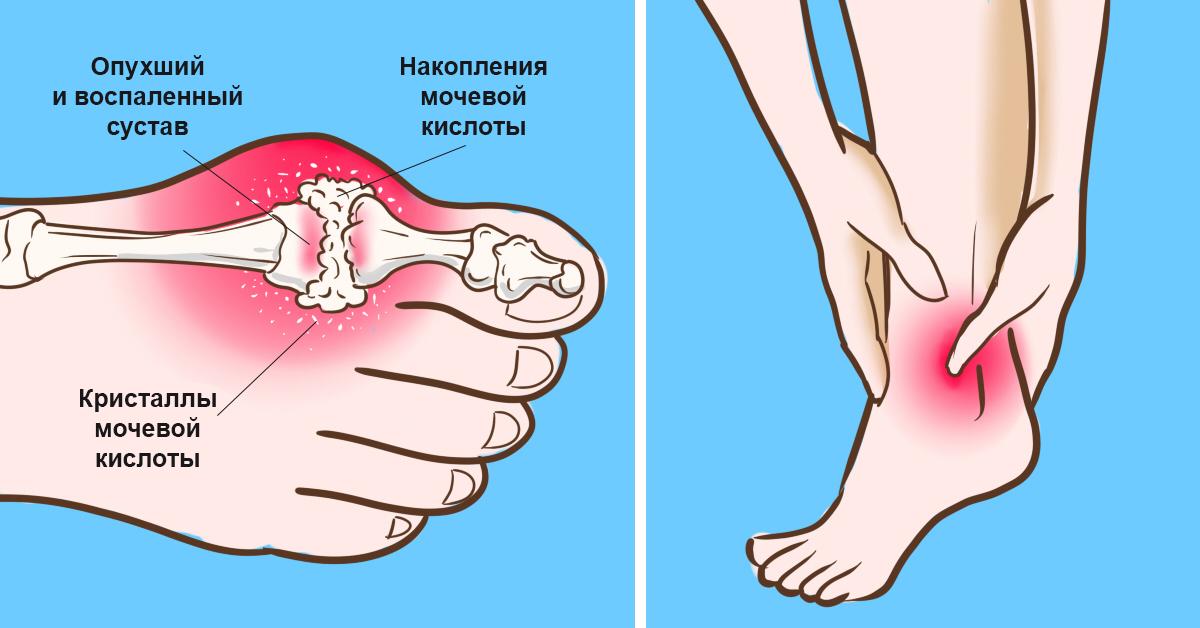 Накопление мочевой кислоты в суставах