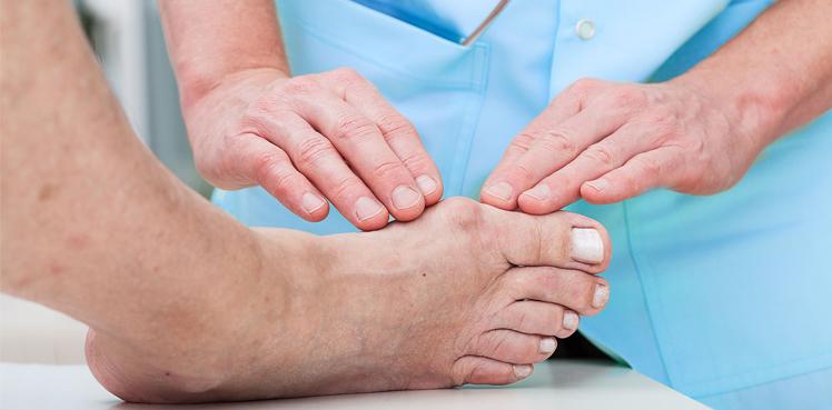 Чем лечится подагра большого пальца ноги