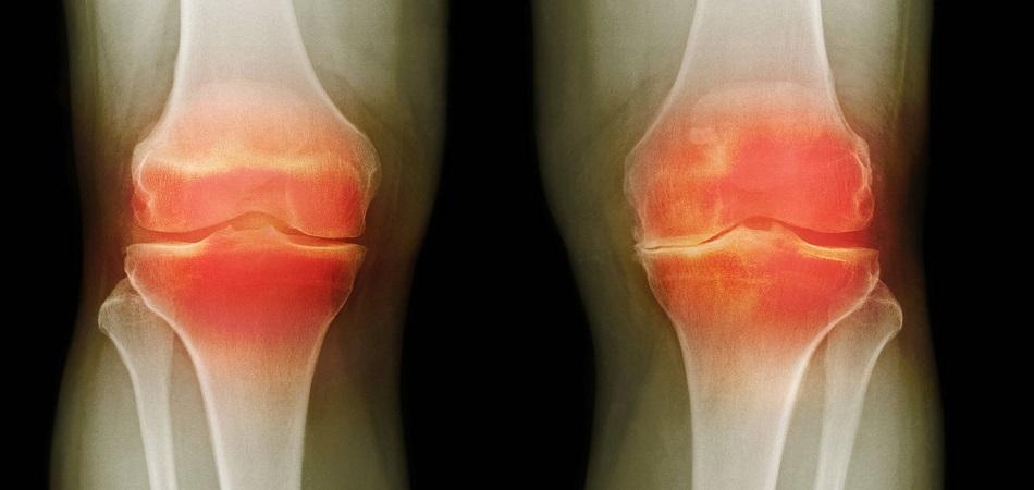 Изображение - Опухают суставы причина bursit-kolennogo-sustava-1
