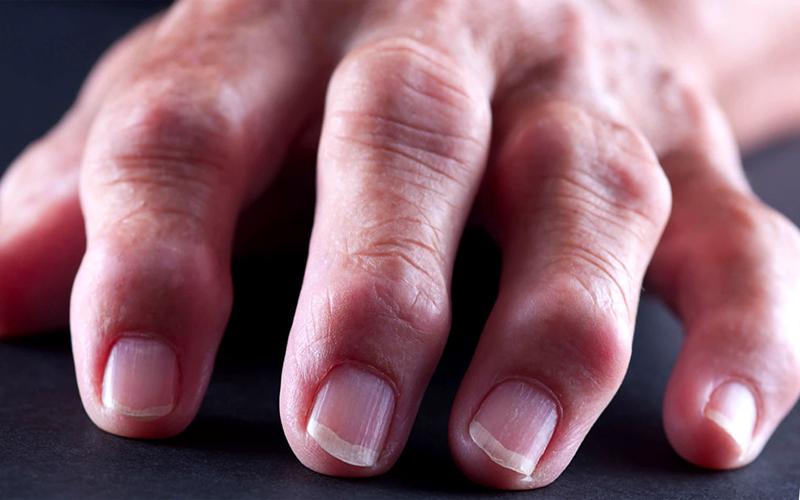 Наросты на суставах пальцев рук