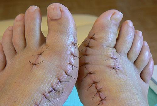 Операция на большой палец ноги