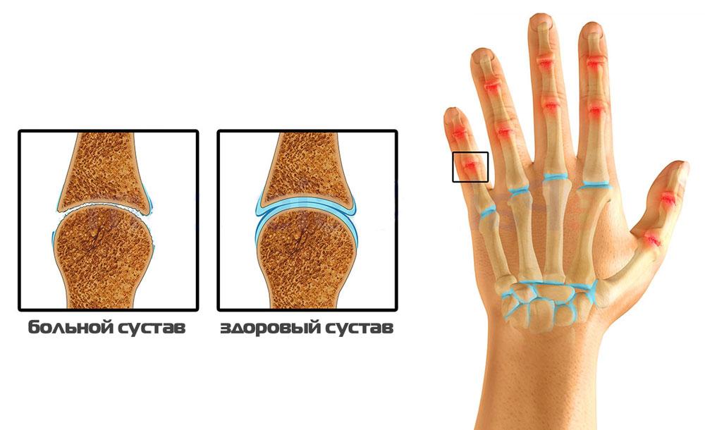 Изображение - Опухают суставы кистей рук лечение normalnyy-i-bolnoy-sustav