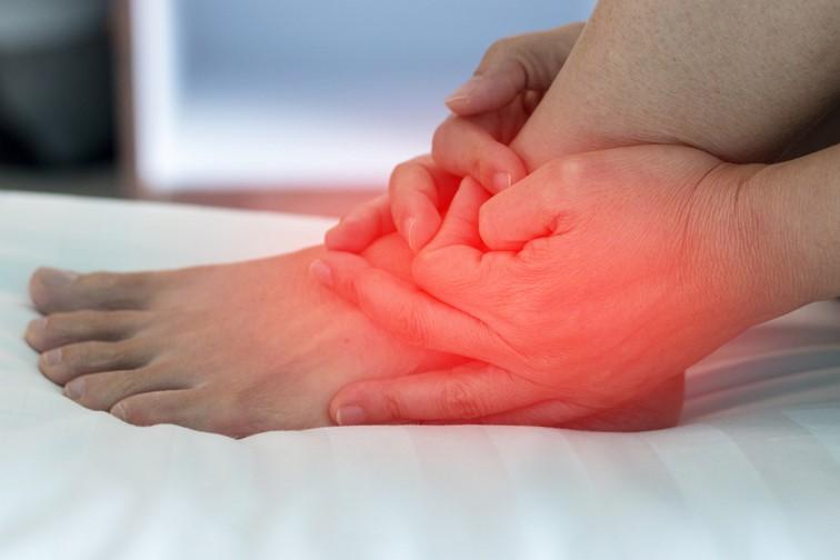 Опухоль при подагре на ноге