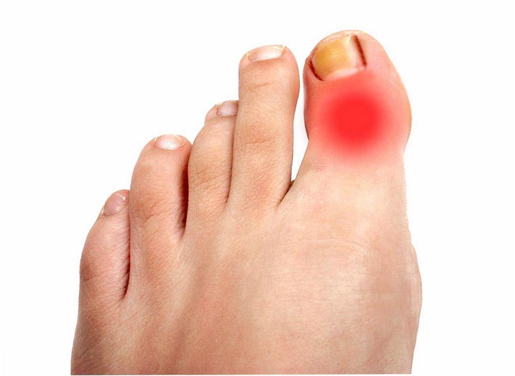 Опухоль на большом пальце ноги