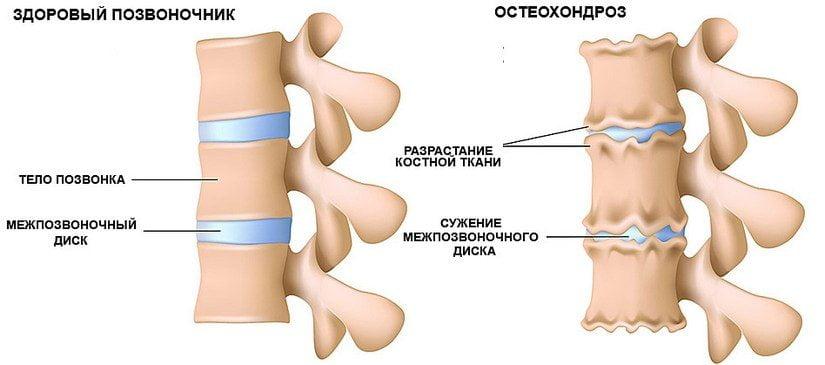 Почему возникает остеохондроз