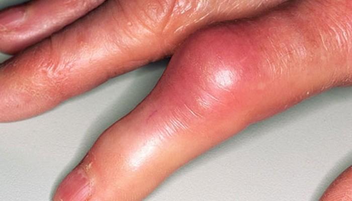 Подагрический артрит пальцев рук