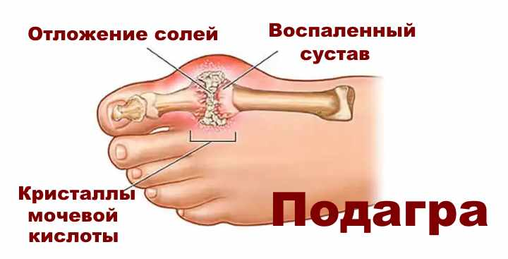 Изображение - Диета при отложении солей в суставах otlozhenie-solej-v-sustavakh