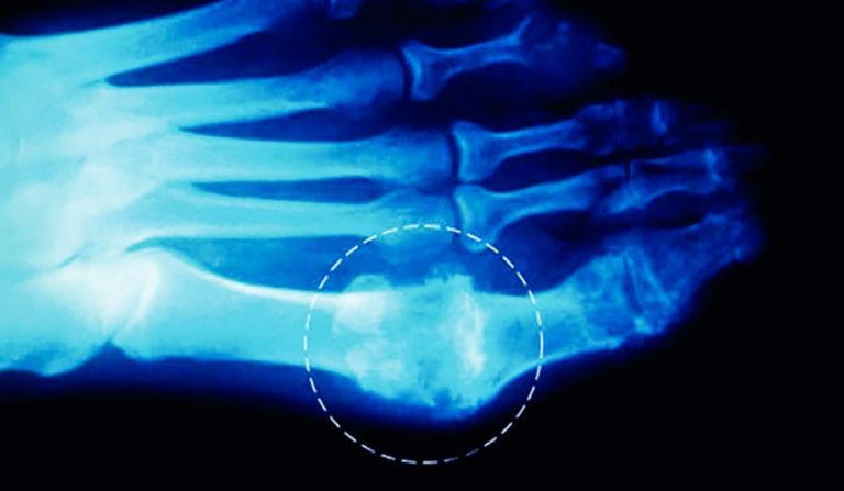Отложение мочекислых солей на рентгенограмме