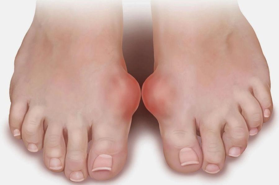 Отложение солей на плюснефаланговом суставе большого пальца ноги