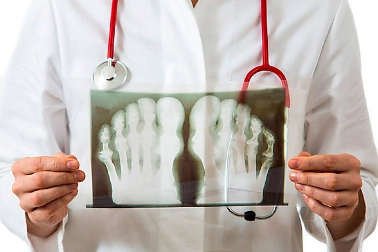 Подагра от чего возникает - Ортопед.info