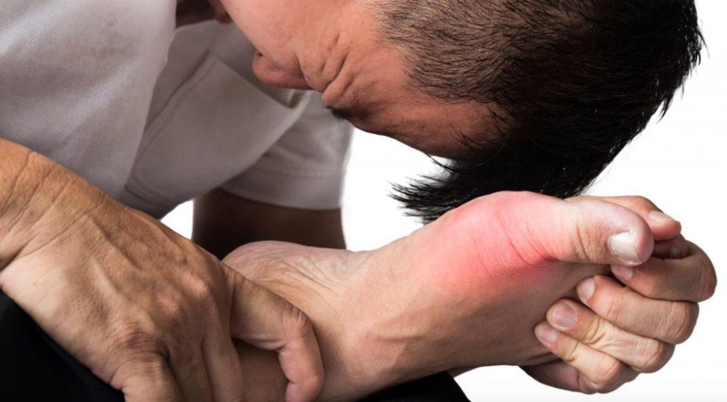 Повышенный уровень мочевой кислоты у мужчин