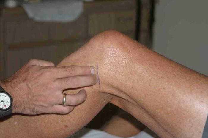 Проблемы с коленом