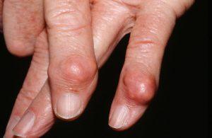 Тофусы на пальцах рук