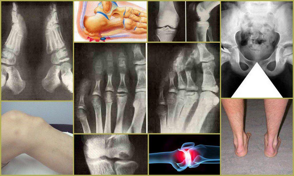 Внешние и рентгеновские проявления