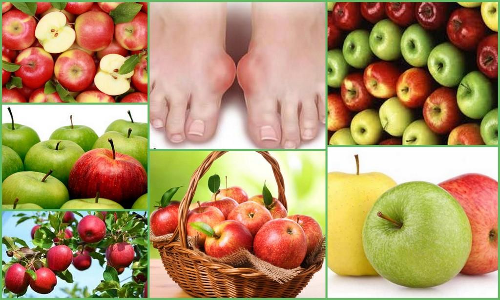 Яблоки при подагре
